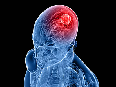 Treatment - Neurosurgical Oncology
